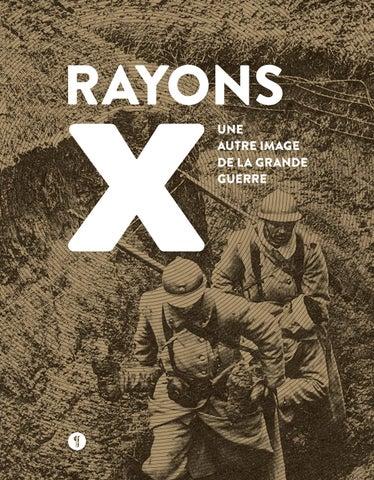 7f60d10ca48441 Développée suite à la découverte des rayons X en 1895, la radiologie était  une technique encore balbutiante à la déclaration de la guerre, en 1914.