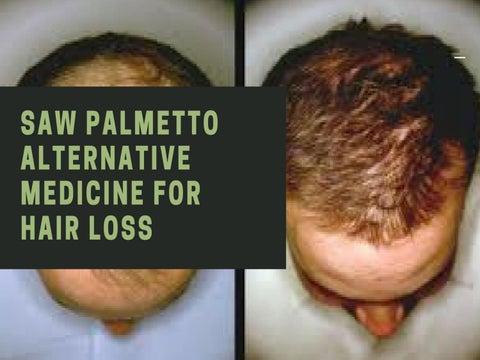 saw palmetto for androgenic alopecia