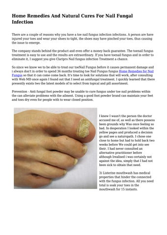 Home Remedies And Natural Cures For Nail Fungal Infection... by ...