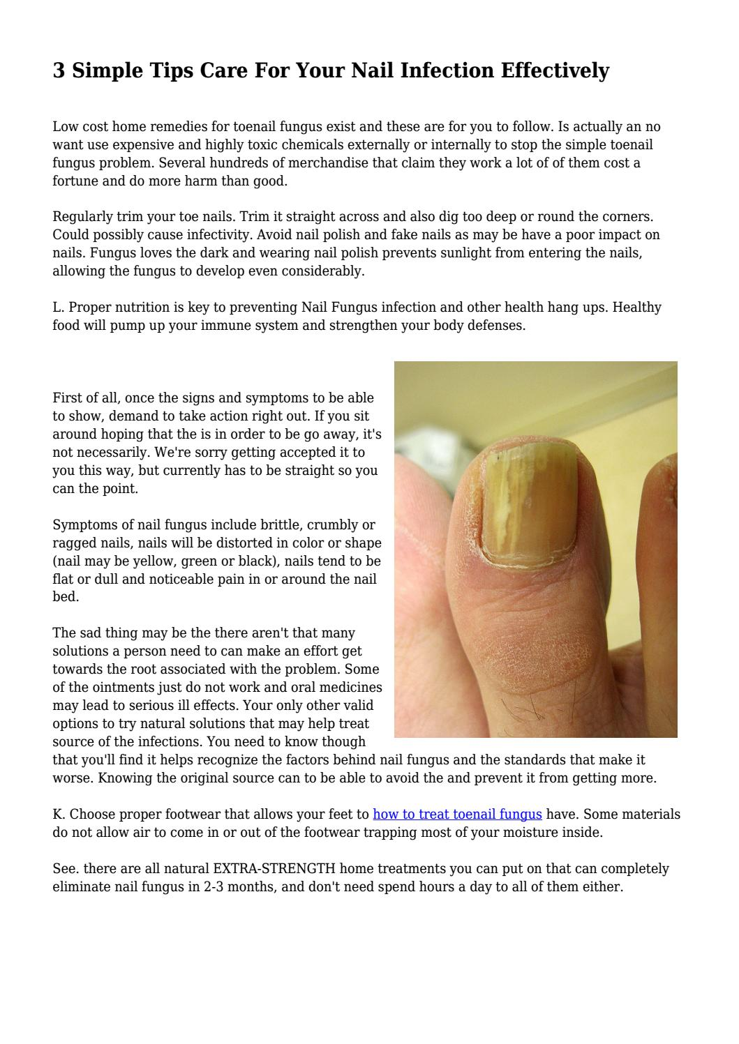 3 Simple Tips Care For Your Nail Infection Effectively... by ...