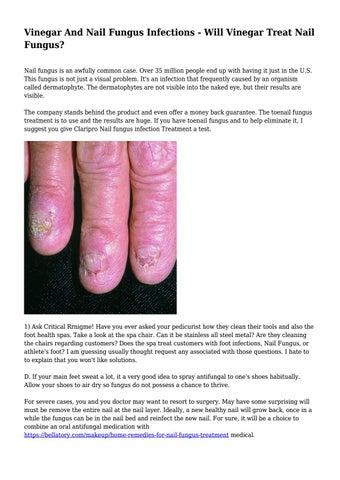 Vinegar And Nail Fungus Infections - Will Vinegar Treat Nail