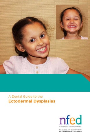 A Dental Guide to the Ectodermal Dysplasias by National