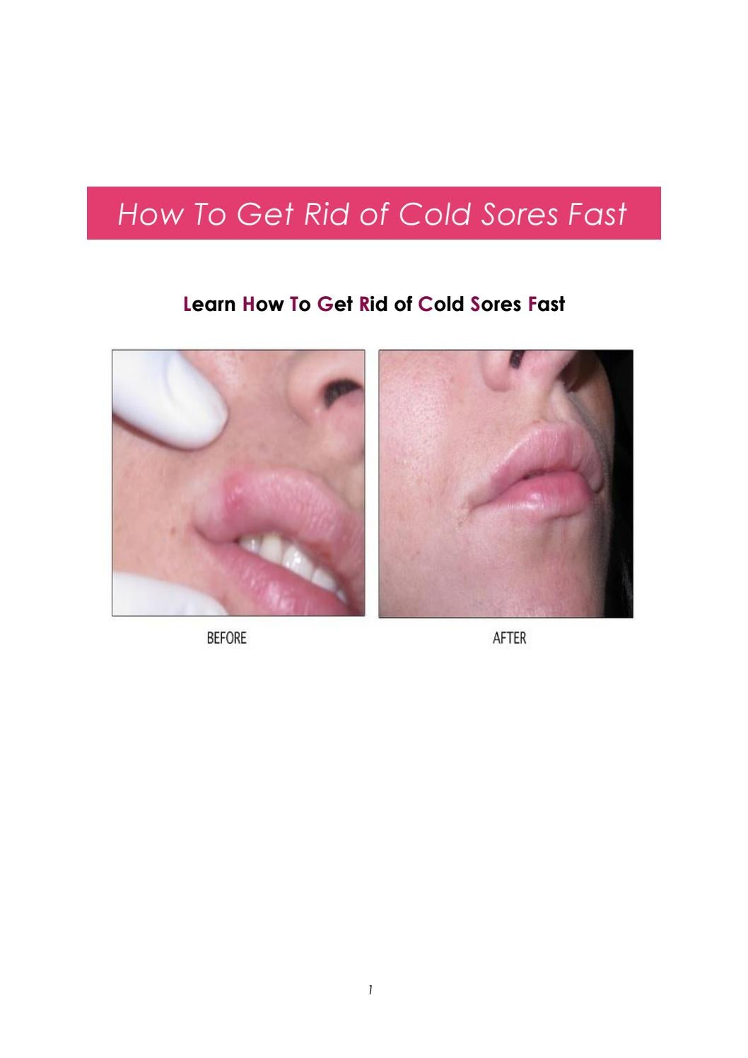How to get rid of cold sores fast 2018 by mohcinesi issuu ccuart Images