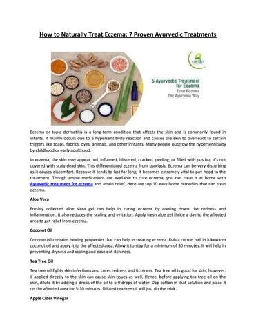 How To Naturally Treat Eczema By Ankur Anki Issuu