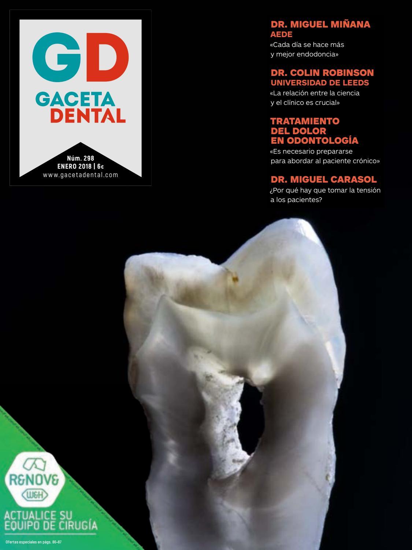 Gaceta Dental - 298 by Peldaño - issuu
