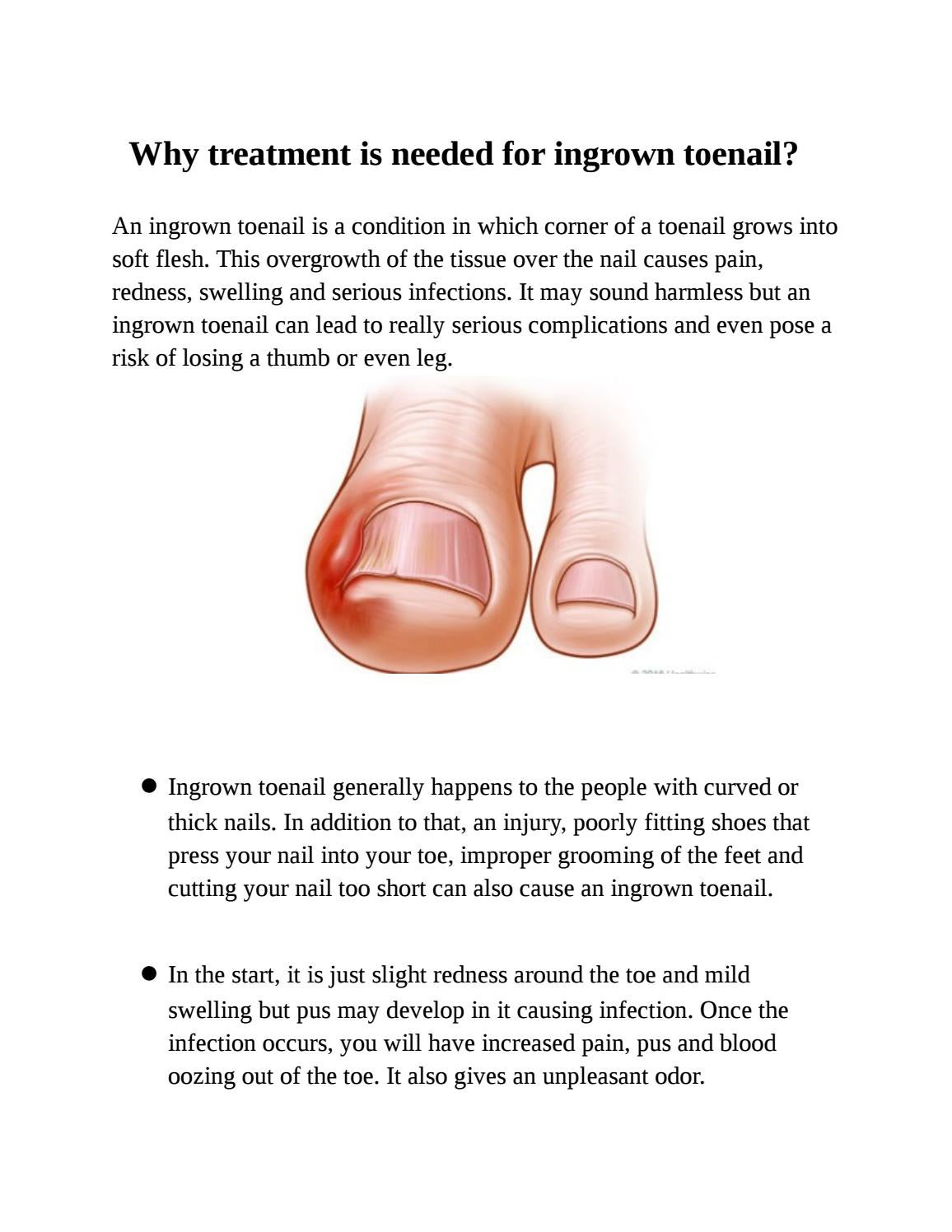Why treatment is needed for ingrown toenail by runawaybaypodiatrist ...