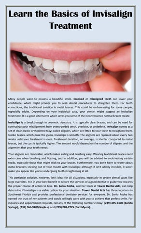 Learn The Basics Of Invisalign Treatment By Dr Sonia Rocha Issuu