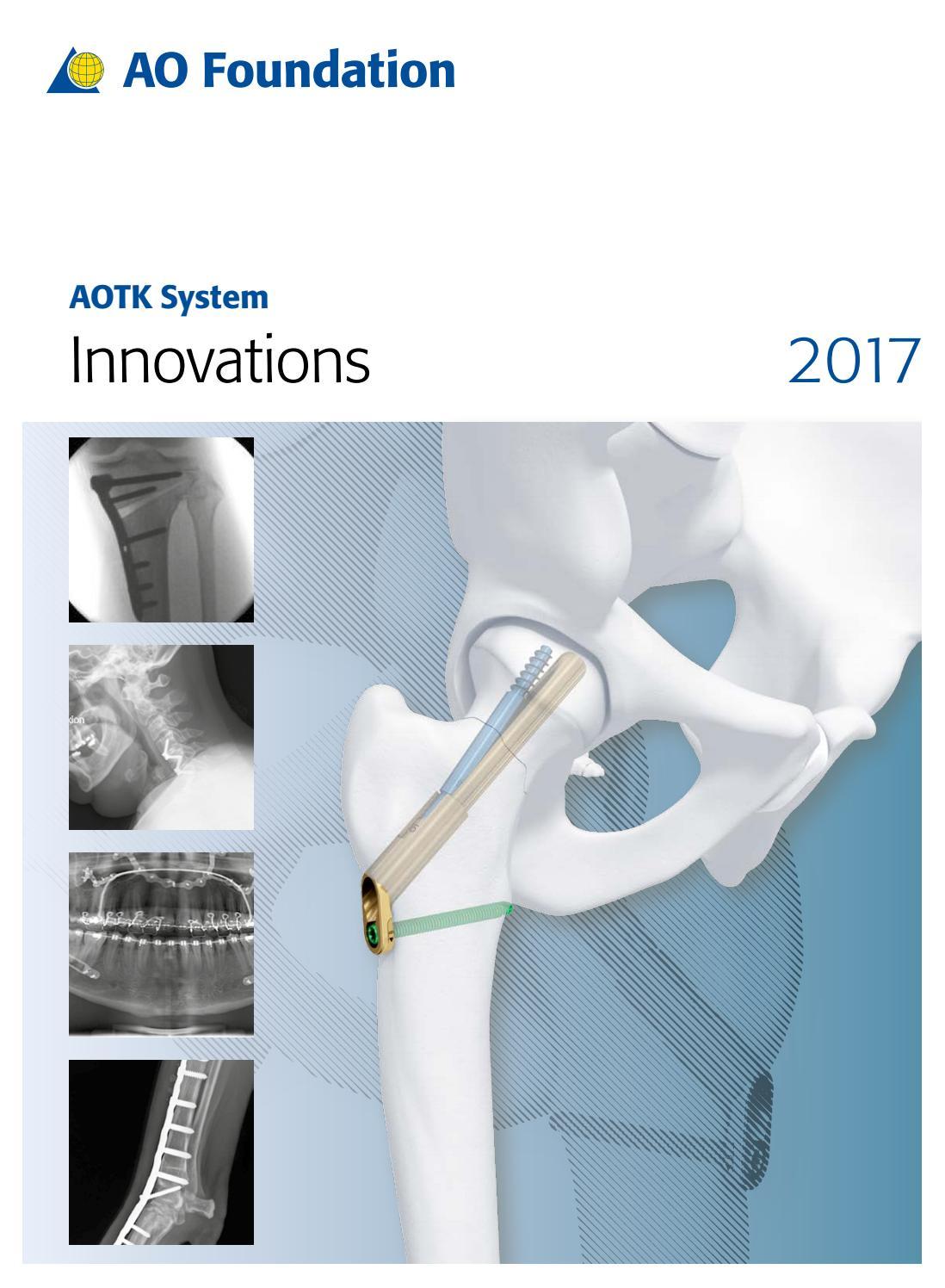 AOTK System Innovations | 2017 by AO Foundation - issuu