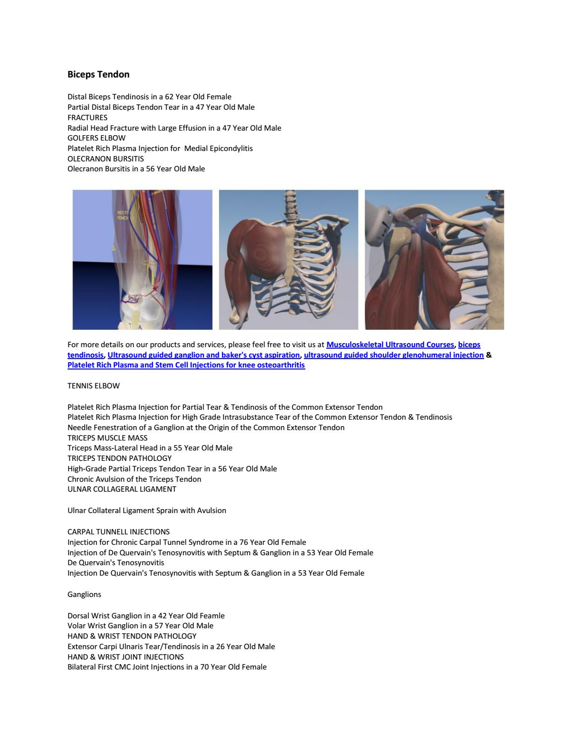 Biceps Tendon By Probeultrasound02 Issuu