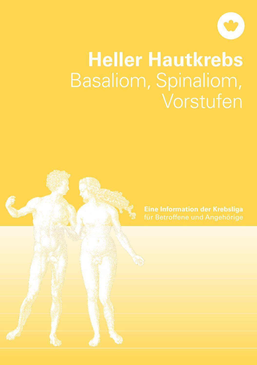 Heller Hautkrebs By Krebsliga Schweiz Issuu