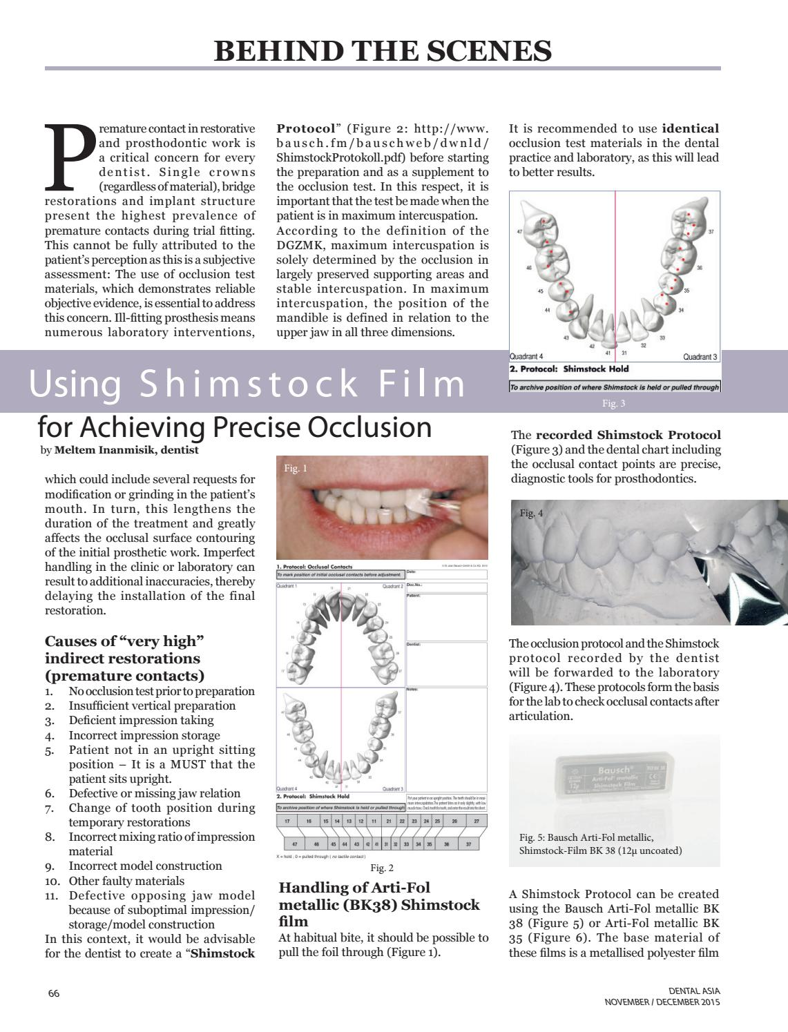 Using Shimstock Film for achieving precise occlusion by Pablo