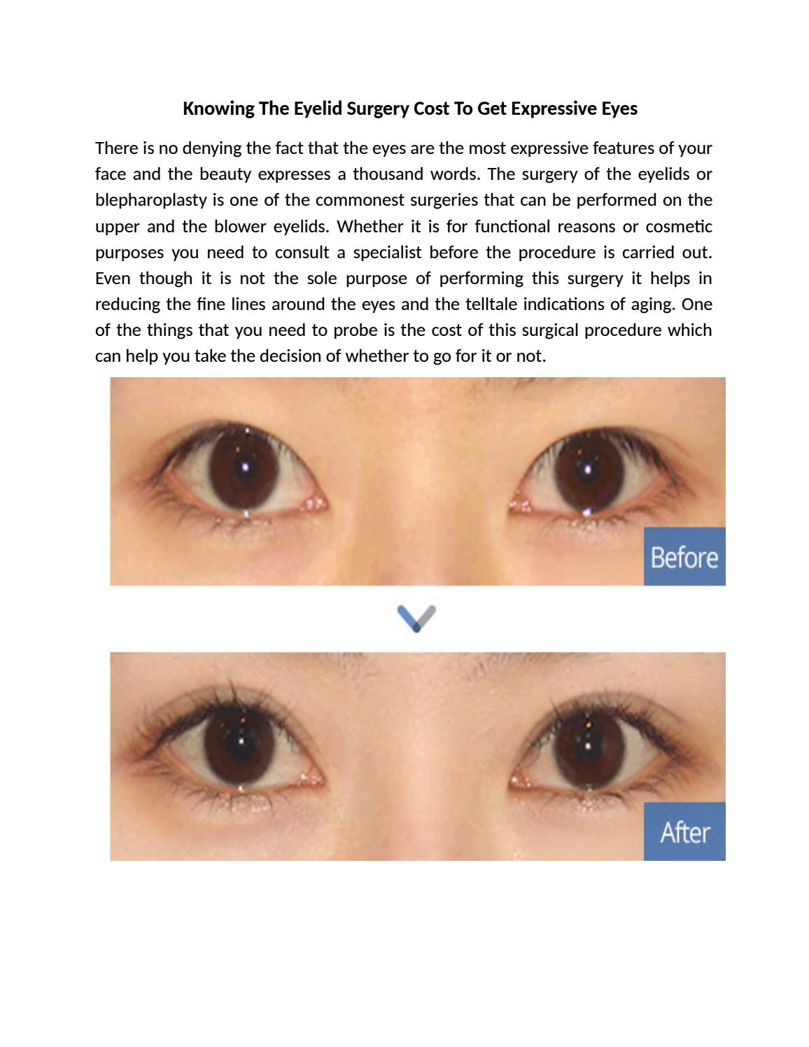 Knowing The Eyelid Surgery Cost To Get Expressive Eyes by