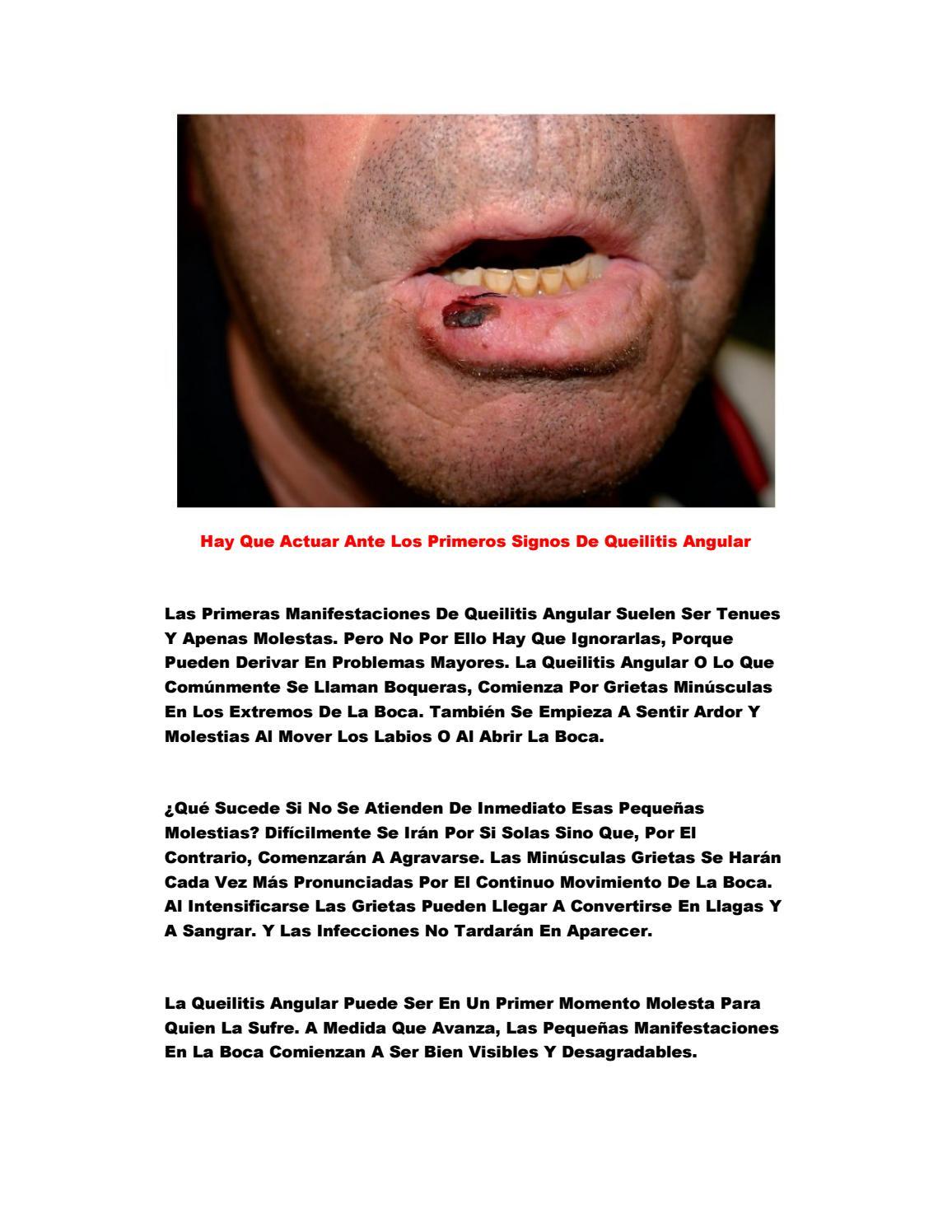 crema antifungica boqueras