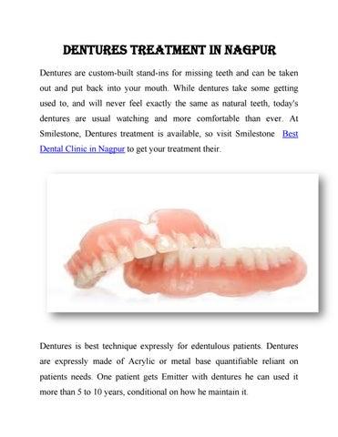 Dentures treatment in nagpur by Smilestone Dental Care - issuu