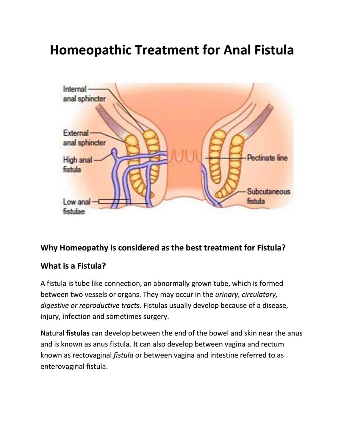 Anal painless tube