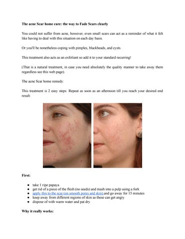 how to get rid of cystic acne scars naturally