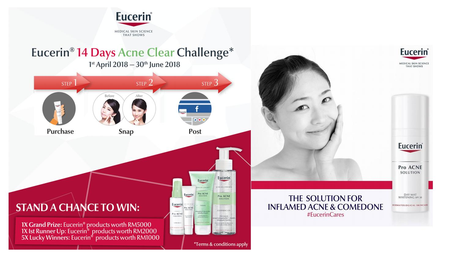 Get Rid of Acne Scars With Eucerin Acne Treatment Malaysia by  info.eucerinmy - issuu 99344d6fd68