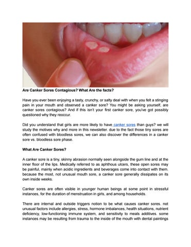 Canker sores contagious sexually