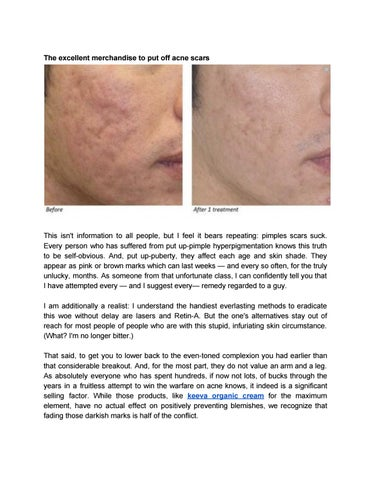 How To Get Rid Of Acne Scars Fast by akona4404 - issuu