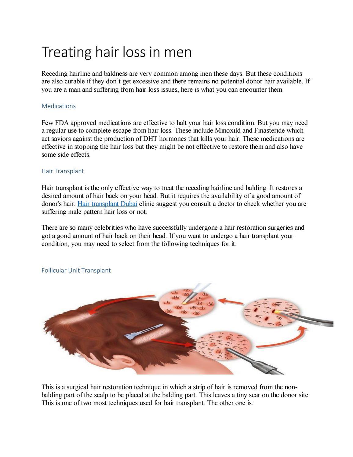 Treating Hair Loss In Men by saddaf khan369 - issuu