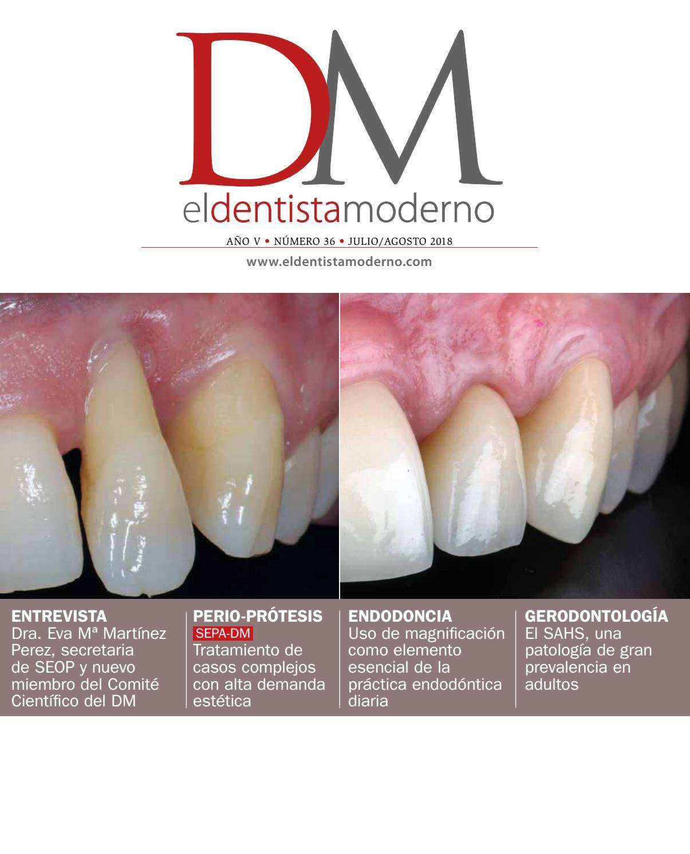 tratamiento de dientes sueltos diabetes infantil