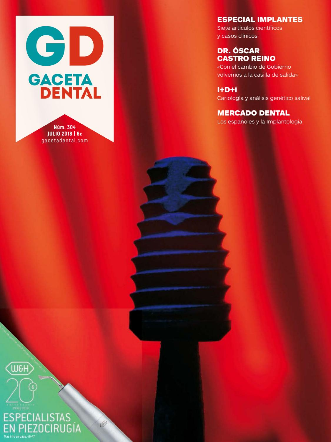 Gaceta Dental - 304 by Peldaño - issuu