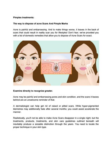 Acne Treatment Homemade Remedies By Akona4404 Issuu