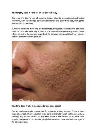 how to pimples go away