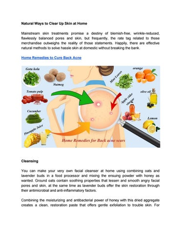 Home Remedies To Cure Back Acne By Stellamaxwell415 Issuu