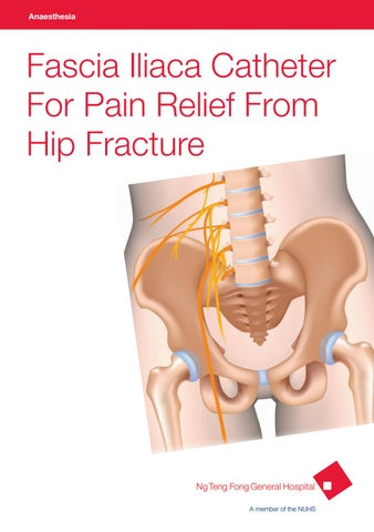 Fascia IIiaca Catheter for Pain Relief from Hip Fracture by