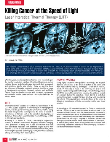 Page 14 of Killing Cancer at the Speed of Light: Laser Interstitial Thermal Therapy (LITT)