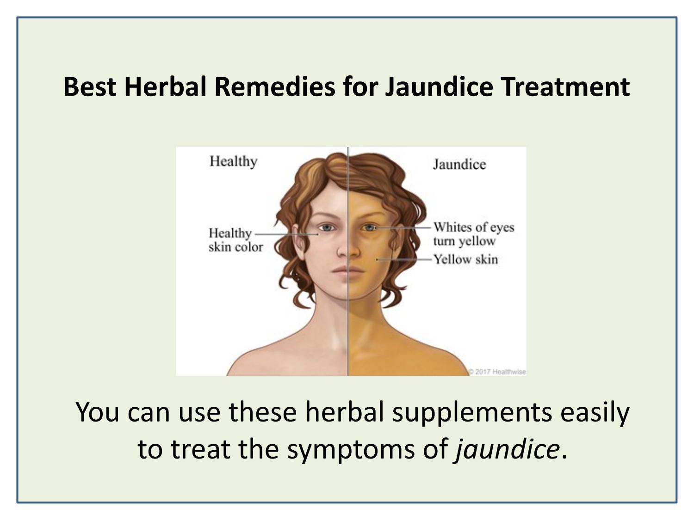 Jaundice : Causes, Symptoms and Treatments - Jaundinil