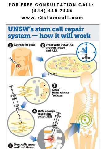 Stem Cell Repair System | Regenerative Medicine Houston United States
