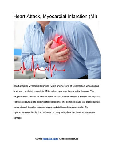Heart Attack Or Myocardial Infarction (MI) by Heart and