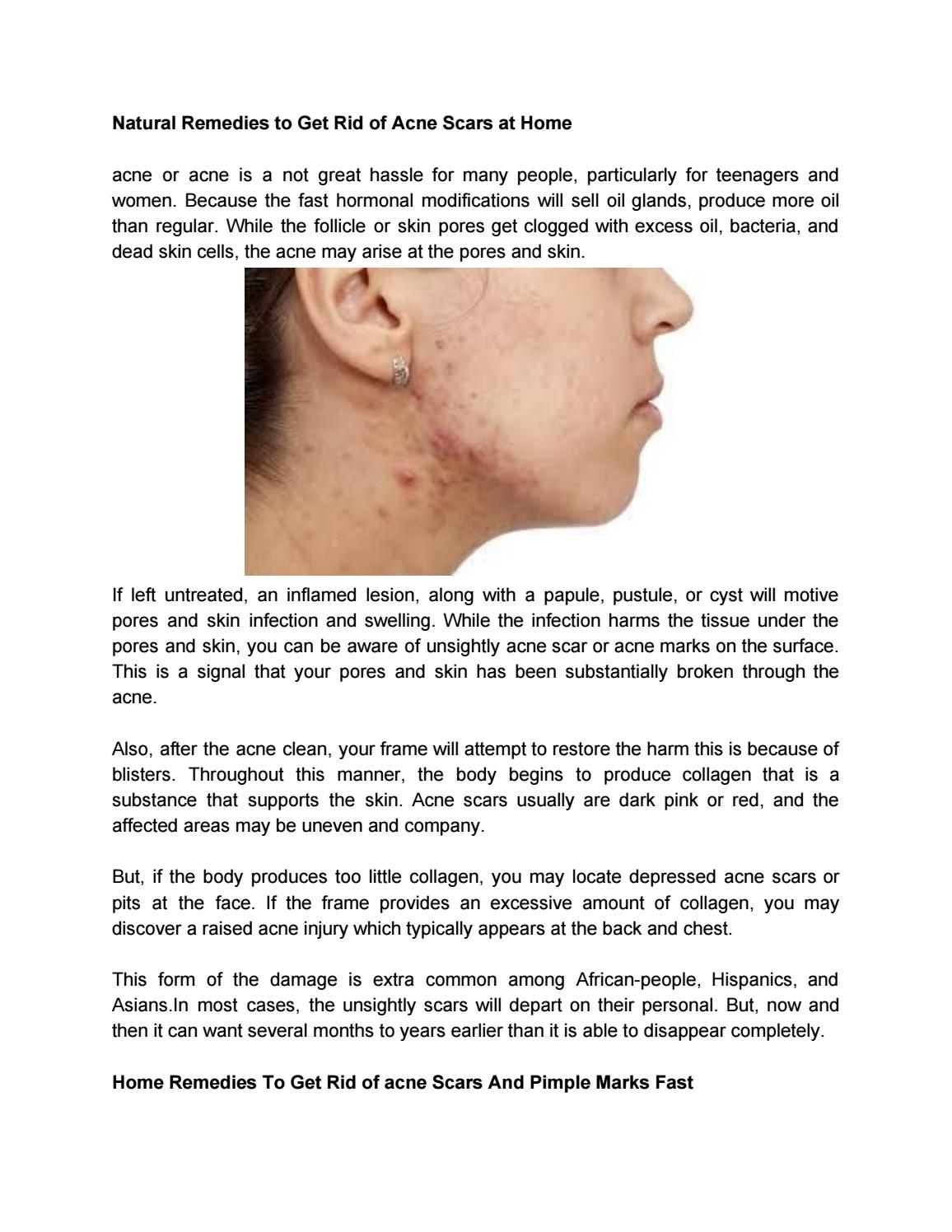 Natural Remedies To Get Rid Of Acne Scars At Home By Maryjulie321 Issuu