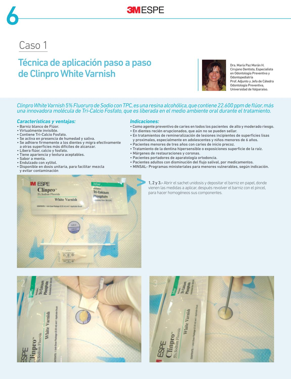 Clinpro White Varnish by Dident SRL - issuu