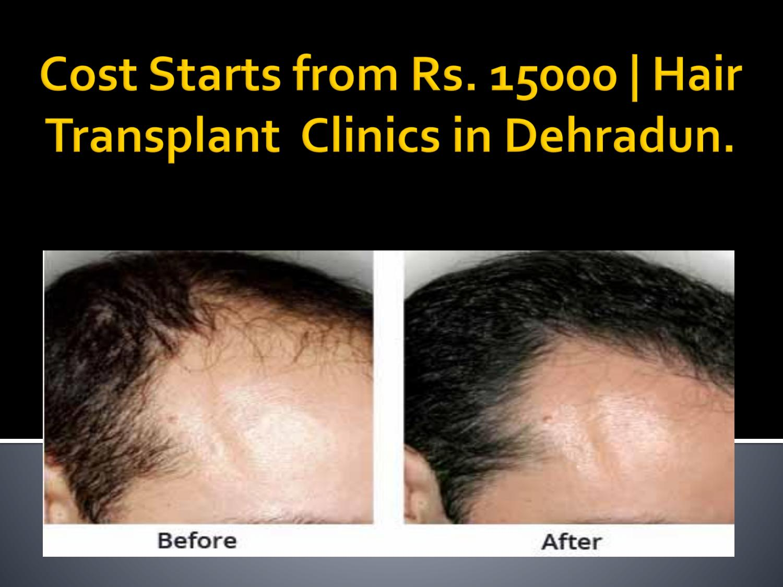 Hair Transplant Cost In Dehradun Hair Transplant India By Manjot Kaur Issuu
