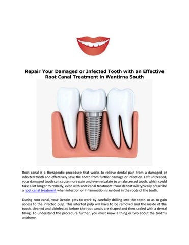Repair Your Damaged or Infected Tooth with an Effective Root