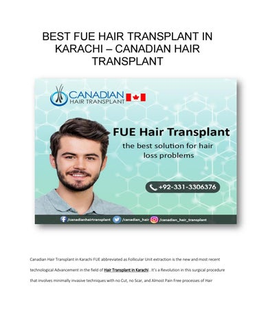 Best FUE Hair Transplant in Karachi by syed fahad - issuu