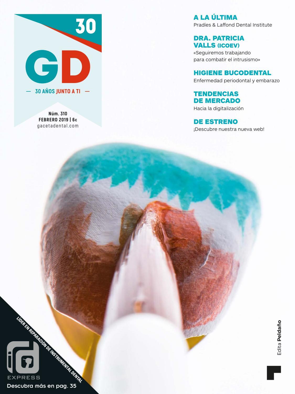5b4a7ef19 Gaceta Dental - 310 by Peldaño - issuu