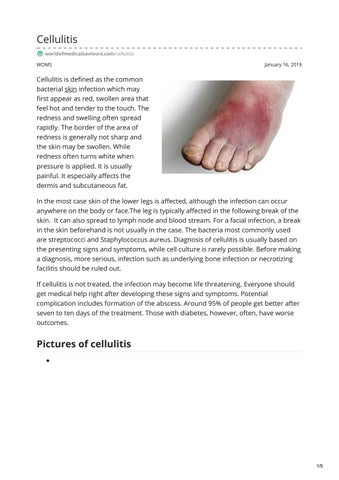 CELLULITIS by worldofmedicalsaviours - issuu