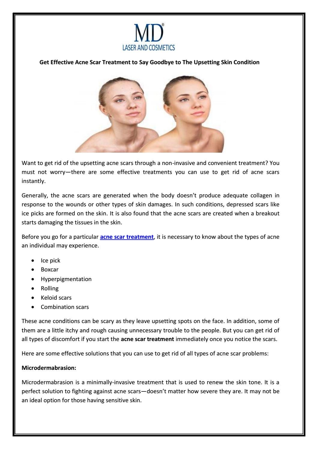 Get Effective Acne Scar Treatment to Say Goodbye to The