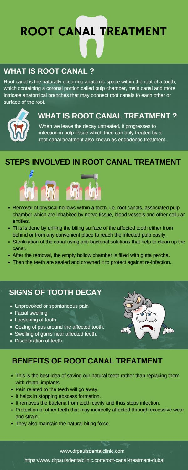 Root canal treatment by SAMBRO - issuu