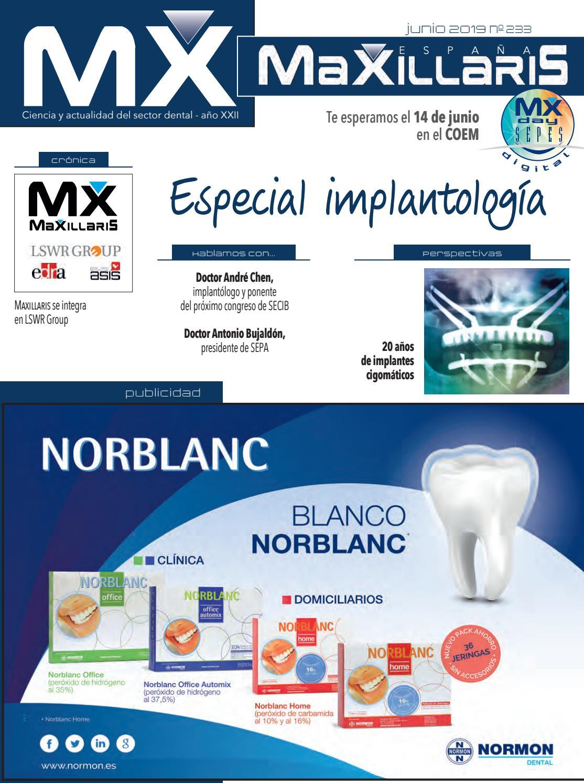agenesia de implante dental o pontevedra