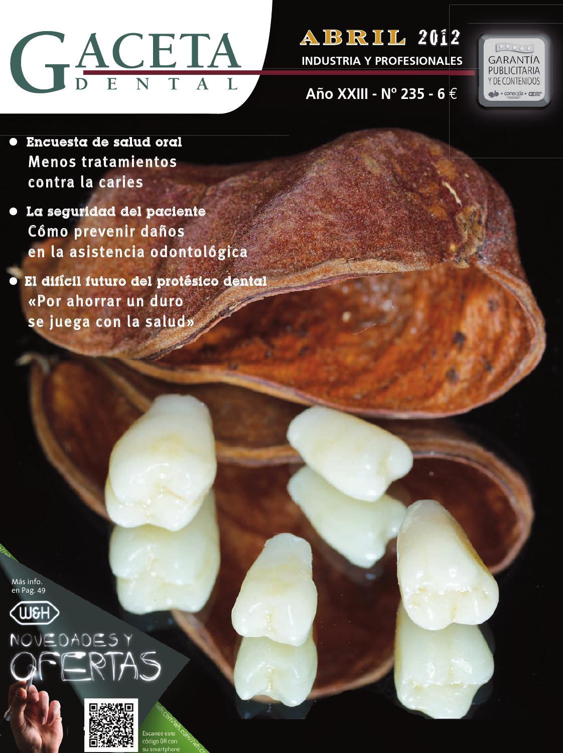 a19cd1b6 Gaceta Dental - 235 by Peldaño - issuu