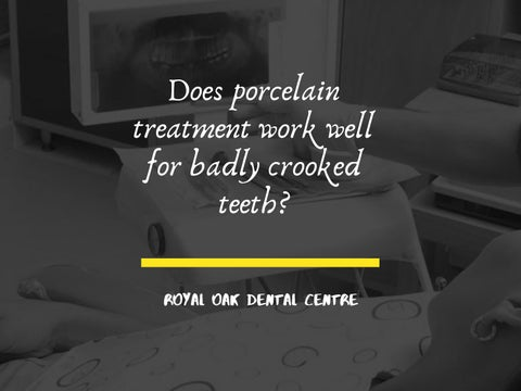 Does porcelain treatment work well for badly crooked teeth by Royal