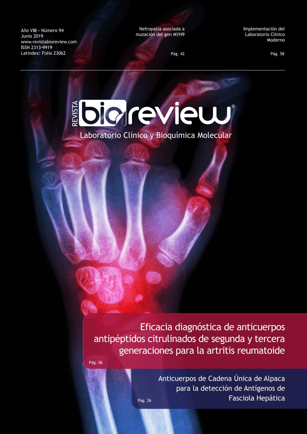 Fascioliasis epidemiología de la hipertensión
