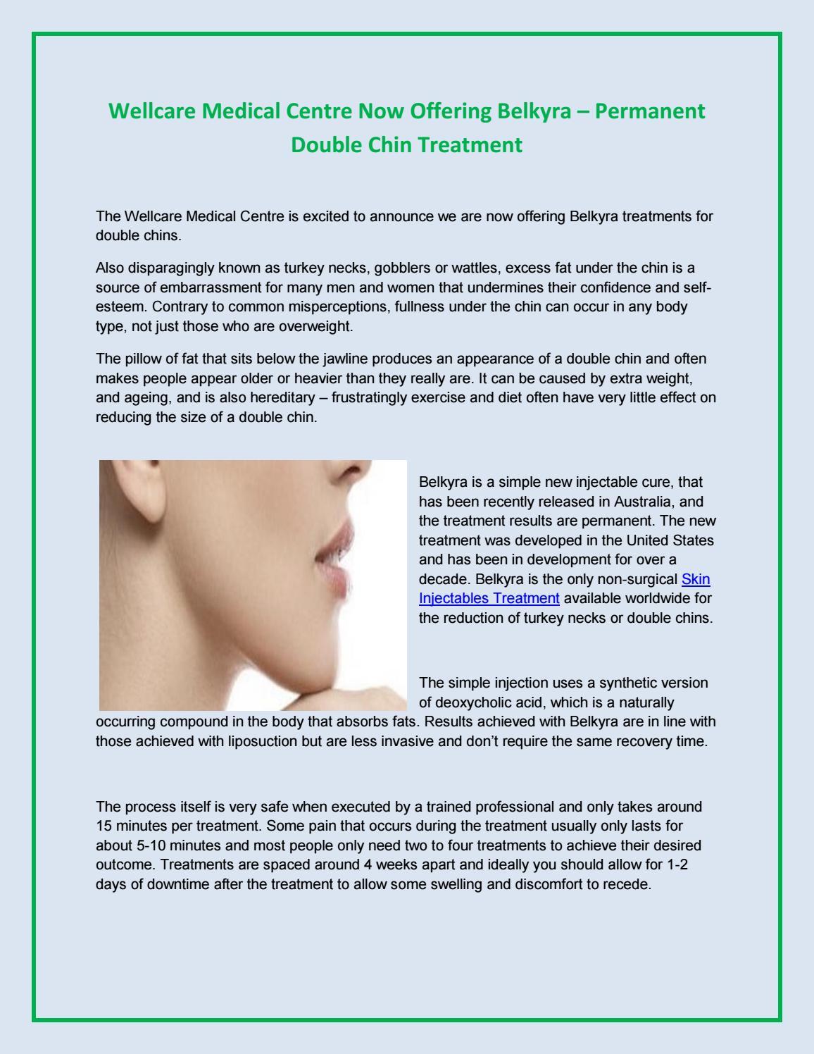 Reduce fat below chin