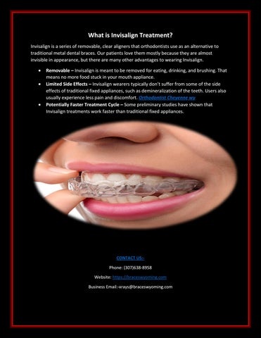 How to get Invisalign Costs