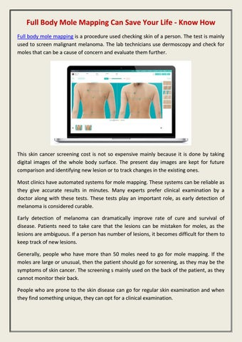 Full Body Mole Mapping Can Save Your Life Know How By Mole Check Clinic Issuu